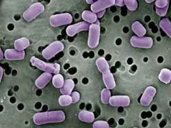 Pictures Of Lactobacillus